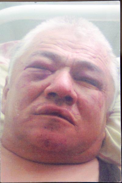 Этот снимок сделан в момент поступления Скакова в больницу